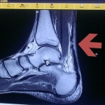 My Husband Ruptured His Achilles Tendon